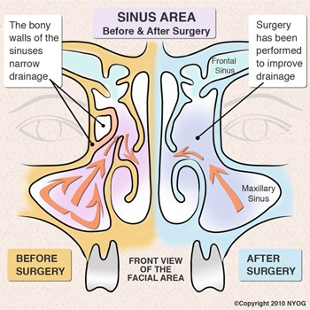 Ancient Technique, Modern Science: Endoscopic Sinus Surgery