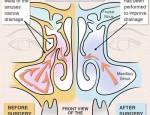 Ancient Technique, Modern Science: Endoscopic Sinus Surgery